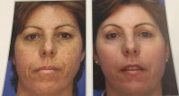 nano laser peel results before/after
